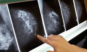 cancer-survival-nhs