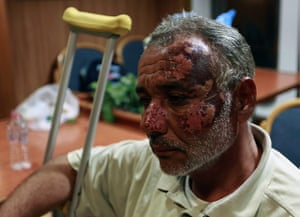 Misrata, Libya : Libyan ambulance driver wounded in Misrata, arrives in the port of Benghazi