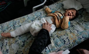 Misrata: In pictures: Wounded Libyan girl, 3 suffers with her injuries sustained by shrapnel