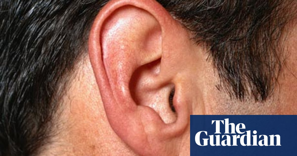 Dr Luisa Dillner's guide to       Tinnitus | Life and style