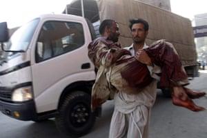 Pakistan Bomb Attacks: An injured man is rushed to a hospital in Peshawar, Pakistan