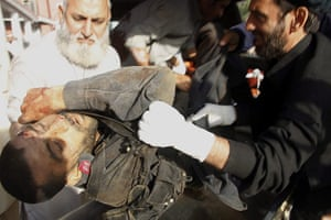 Pakistan Bomb Attacks: A paramilitary soldier who was injured in the attacks is rushed to hospital