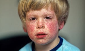 A young boy with a measles rash
