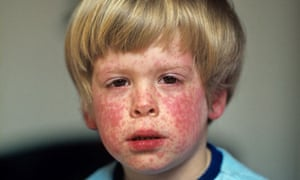 Measles rash on the face of a young patient