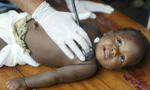 A baby being treated for diarrhoea