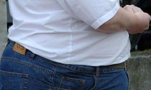 Obesity hospital admissions