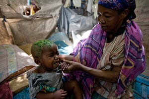 Somalia camps: for internally diplaced people due to drought and civil war