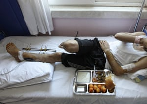 Syrian Refugees: A tray of food lies next to a wounded Syrian man