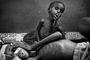 Somalia by Robin Hammond: Children in Banadir Hospital being treated for severe malnutrition