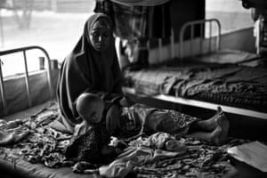 Somalia by Robin Hammond: A MSF (Doctors Without Borders) feeding centre in Dadaab refugee camp