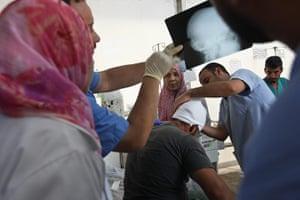 Misrata hospital: nurses look a an x-ray
