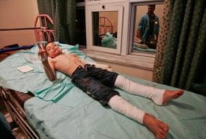 Misrata hospital: Wounded teenager at Hikma Hospital