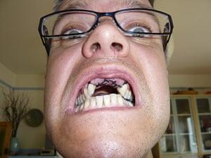 In pictures: Gap: gap in teeth