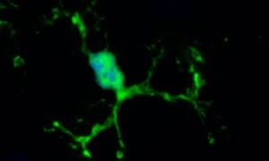 microglial cell from mouse brain expressing green fluorescent protein