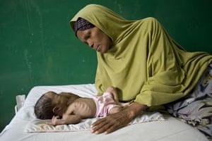 Puntland Somalia : Abdiqaadir Jibril, 2 months old, in Bosaso stabilisation centre