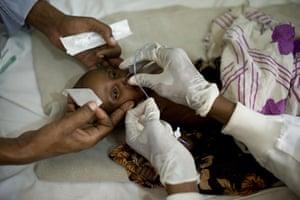 Puntland Somalia : A feeding tube is inserted through Aisha's nose