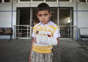 Libya: Boy with broken arm in Zawiyah