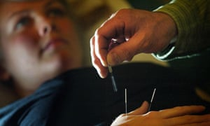 A patient undergoing acupuncture treatment