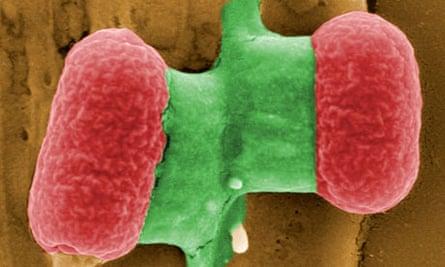 E coli bacteria under an electronic microscope