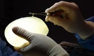 Defective breast implant