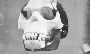 Skull of the famous hoax Piltdown Man