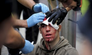An independentist Catalan is treated after being injured during a demonstration at University square on October 12, 2012 in Barcelona.