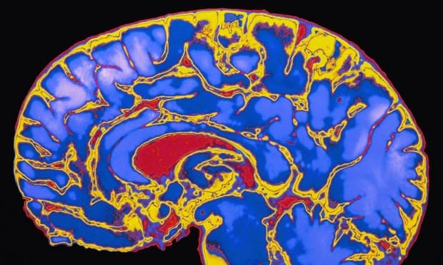 Childhood stimulation key to Brain Development