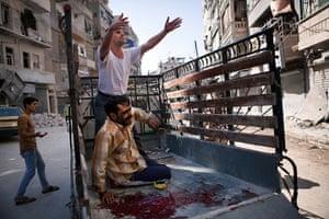 FTA: Maysun: An injured man arrives at the Dar al Shifa hospital in Aleppo