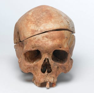 Dissected human skull
