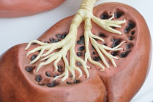 Gruesome cakes: Detail of lung cake