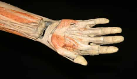 Dissected human hand