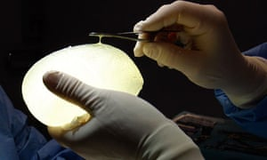 defective silicone gel breast implant manufactured by French company Poly Implant Prothese