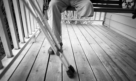 An amputee rests on a veranda