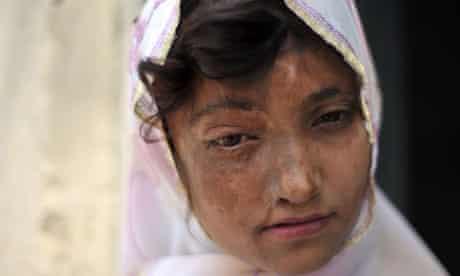 Acid attack victim in Pakistan