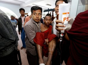 24 hours in pictures: An injured monks is carried into the Monywa hospital