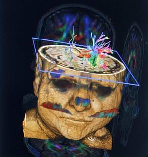 2012 in Science : Child Brain MRI