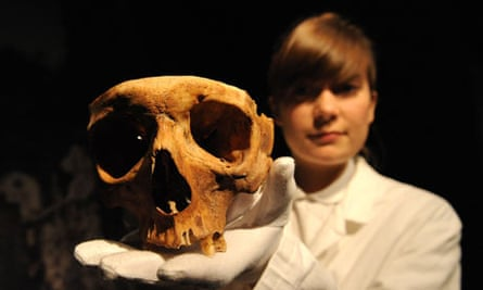 A skull from the Doctors, Dissection and Resurrection Men exhibition