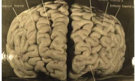 Einstein frontal view