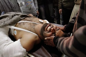 24 hours in pictures: An injured Kashmiri man