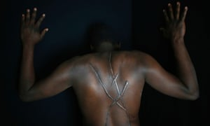 """Hassan Mekki, a 32-year-old Sudanese migrant, shows scars on his back in Athens. Mekki, who fled conflict in his country in hope of a better life in Europe, said he was attacked by a group of men holding Greek flags, and left with deep wounds on his back, throat and neck in August 2012, about five months after he illegally entered Greece.  Black-shirted men on motorcycles, shouting """"Go home black"""" and other racist insults, knocked him out with a blow to the head.  He only later realized that his attackers had left large gashes resembling an """"X"""" across his back"""
