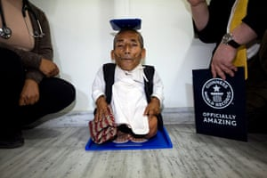 World's shortest man: Dangi goes through a final height verification process at CWIC hospital