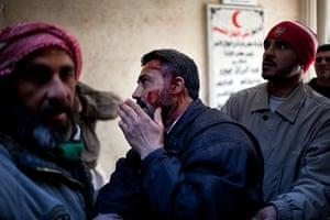 Syria Annan: An injured man arrives at a hospital in Idlib, Syria