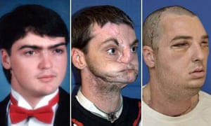 Richard Norris before and after his face transplant