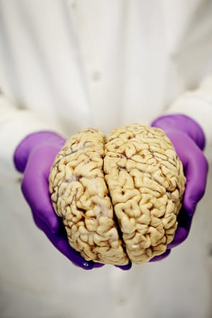 brain: A brain ready for dissection at the Brain Bank