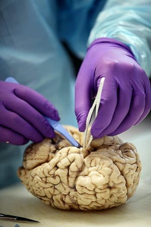 brain: 'After freezing and fixing, the brains have a jaundiced pallor'