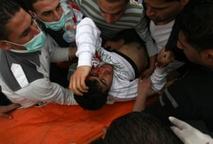 Land Day protests: Palestinian protestor hit by a teargas