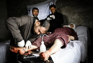 Aleppo, Syria: A doctor works on a woman's foot after she was injured by tank shelling