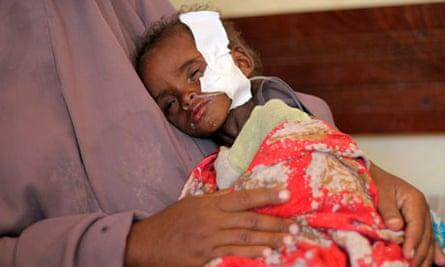Starving child in Kenya