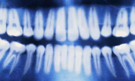 X-ray teeth