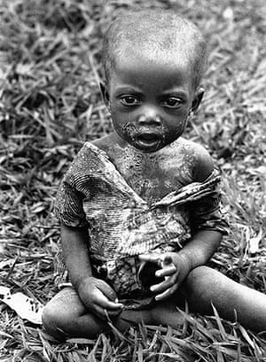 Horst Faas gallery: A sick and hungry Baluba child